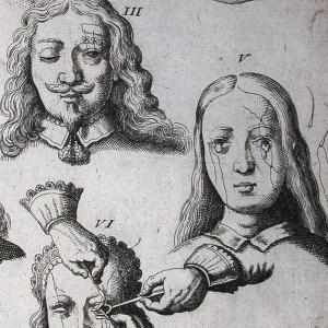 Scultetus' Armamentarium chirurgicum