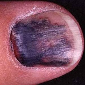 Example image of injured thumb nail from HardinMD.
