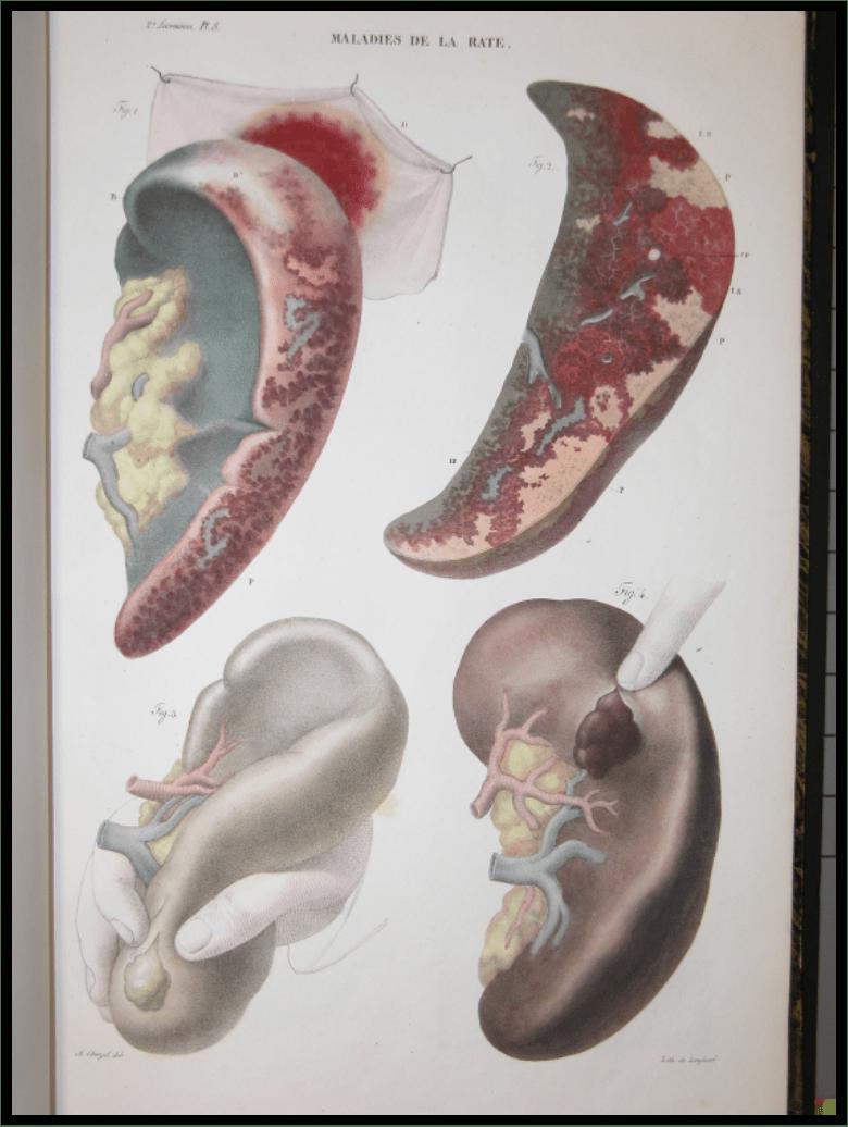 Illustration of Kidney Pathologies