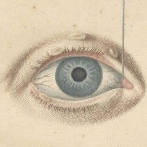 Illustration from Demours Traité des maladies des yeux 1818