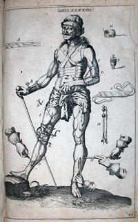 Scultetus, Johannes, 1595-1645