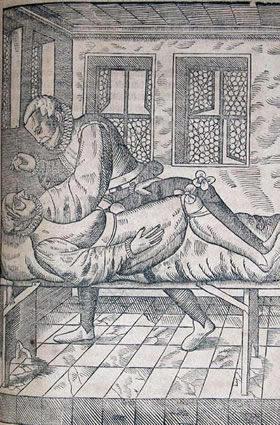 George Bartisch (1535-ca. 1607). Ophthalmodouleia; das is, Augendienst. [Dresen: Matthes Stoeckel], 1583. [28] 274 [83] ll., illus., port.