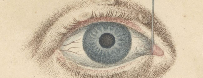 Demours, Antoine Pierre, 1762-1836